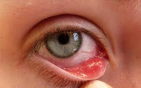 chữa bệnh mắt và tai