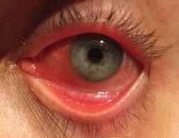 chữa bệnh về mắt